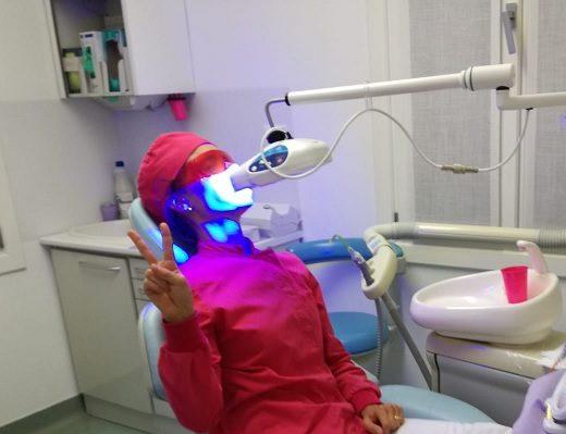 tipi di sbiancamento dei denti