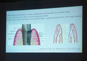 impianto vs dente